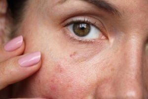 Dermolios - ervaringen - instructie - forum