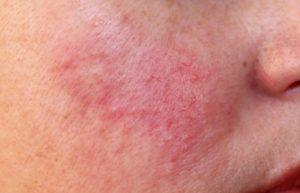 Dermolios - oszczyszczanie twarzy - opmerkingen - radar - bijwerkingen