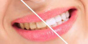 Snowhite Teeth Whitening - skład – allegro – cena